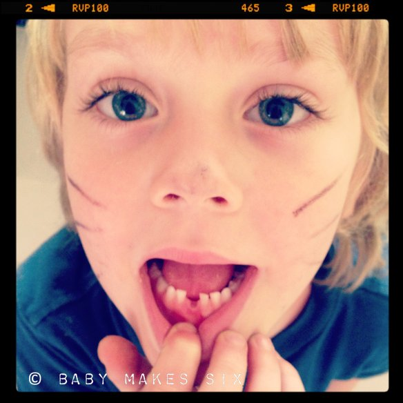 alex_tooth